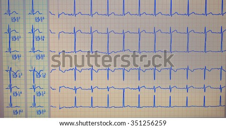 ECG diagram - stock photo