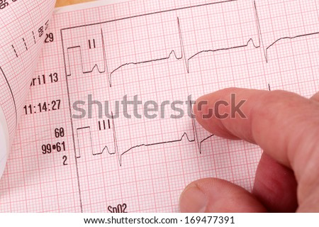 ECG diagram with finger pointing - stock photo