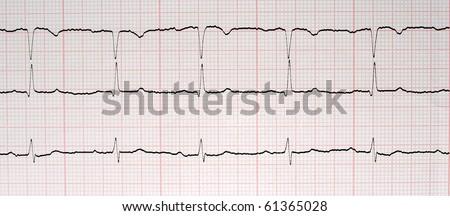 ecg graph, Electrocardiogram ekg - stock photo