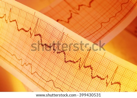 ECG graph, electrocardiogram EKG for medical backgrounds - stock photo