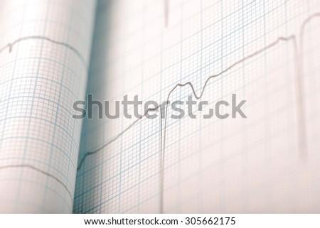 ECG macro health care background - stock photo