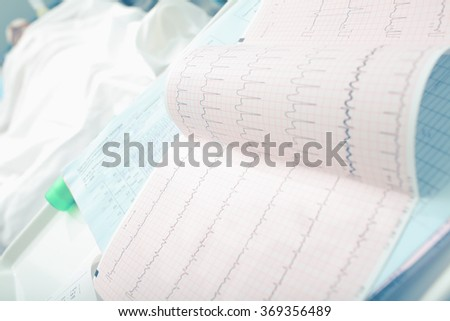 ECG (medical Record) of patient in the hospital ward - stock photo