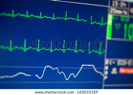 ECG monitor in intensive care - stock photo