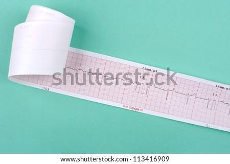 ECG on green background - stock photo