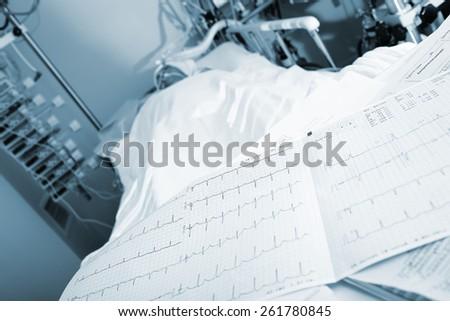 ECG on patient's bed in clock surveillance - stock photo