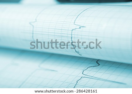 ECG paper as medical background - stock photo