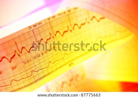 ECG print (Pulse trace) - stock photo
