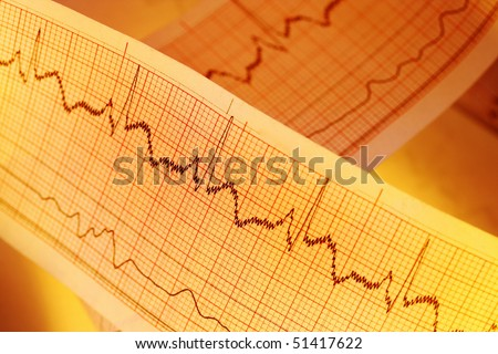 ECG(Pulse trace) for medical - stock photo