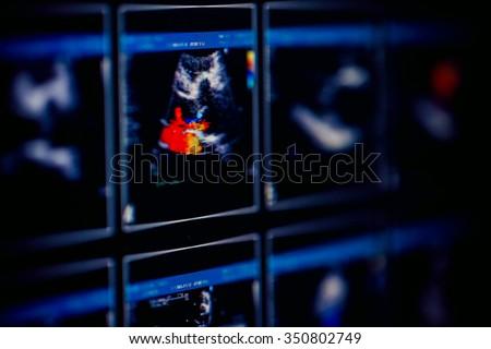 Echocardiography (ultrasound) machine - stock photo