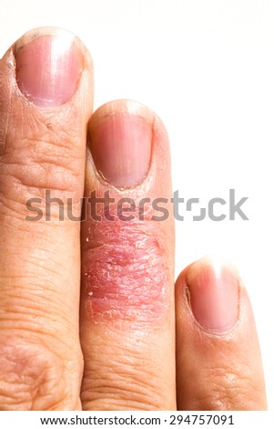 Eczema dermatitis allergic skin rash close-up region on adult finger. Isolated on white background.
