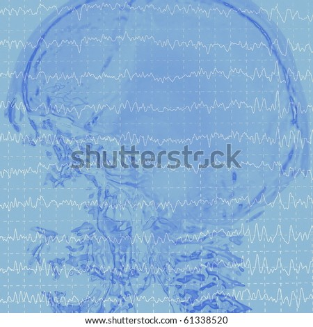 eeg brainwaves and x-ray skull - stock photo