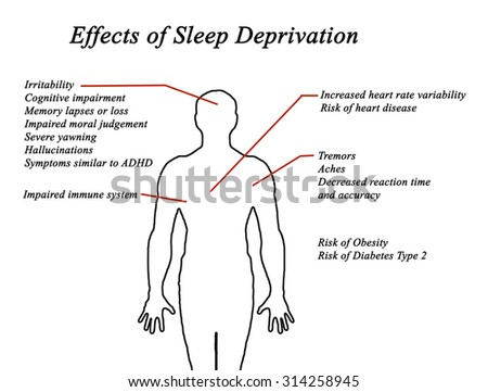 Effects of Sleep Deprivation - stock photo