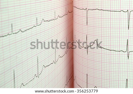 EKG - stock photo