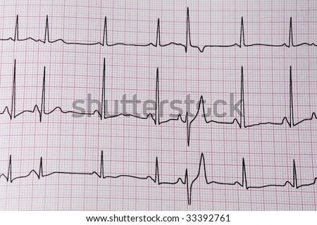 ekg/ ecg - medical background - stock photo