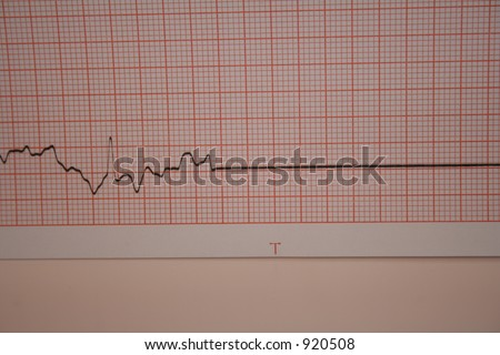ekg flatline - stock photo