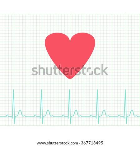 EKG - Medical electrocardiogram on grid paper, graph of heart rhythm, chart strip, 2d illustration, raster - stock photo