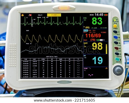how to read heart monitor rhythms