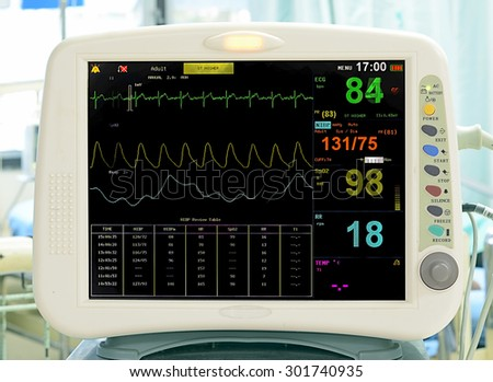 EKG monitor in ICU unit show The waves of blood pressure, blood oxygen saturation, ECG,heart rate - stock photo
