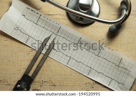 EKG strip with calipers and stethoscope - stock photo