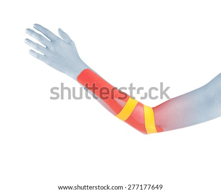 Elbow treated with tex tape therapy. - stock photo
