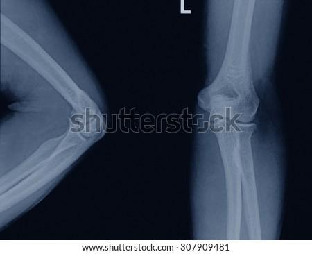 elbow x-rays ( Elbow joint Antero-posterior )on a black background - stock photo