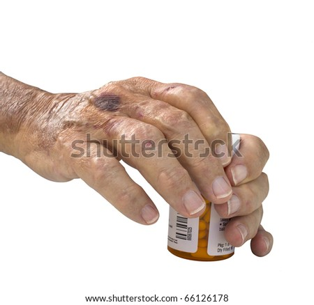 Elderly male hand with arthritis holding pills isolated on a white background - stock photo