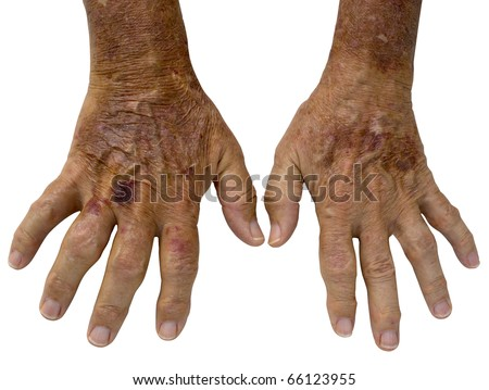 Elderly Male hands with severe disfiguring Rheumatoid Arthritis and age spots - stock photo