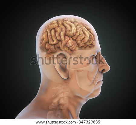 Elderly Male with Unhealthy Brain - stock photo