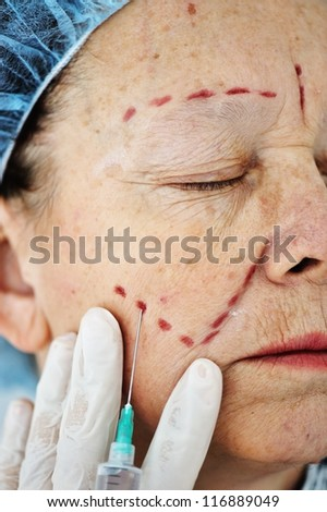 Elderly woman getting Botox injection procedure - stock photo