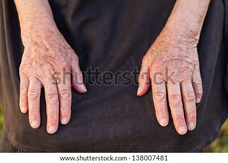 Elderly woman's hands suffering from articular disease - stock photo