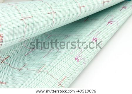 Electro-cardiograph - stock photo