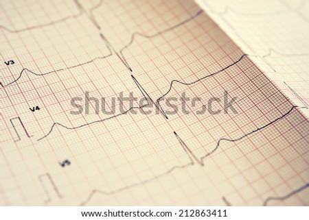 Electrocardiogram  - stock photo
