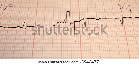 Electrocardiogram ecg, - stock photo