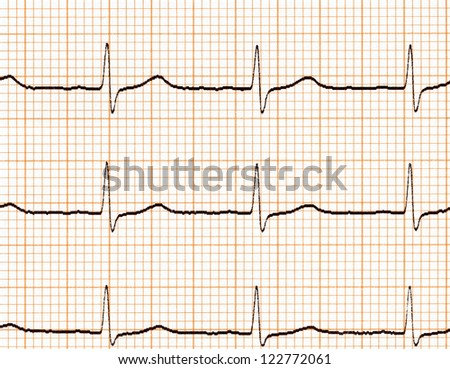 Electrocardiogram (ECG) on paper - stock photo
