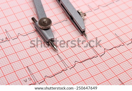 Electrocardiogram graph and calipers, ekg heart rhythm, medicine concept - stock photo
