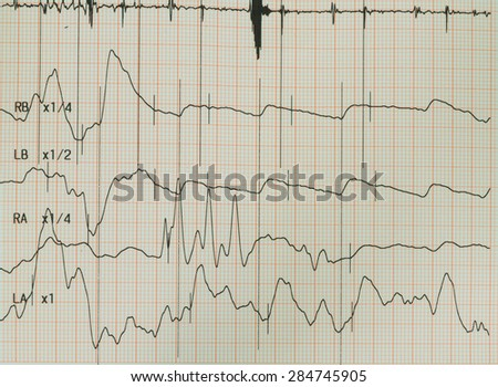 Electrocardiogram graph , ekg heart rhythm, medicine concept - stock photo