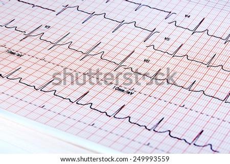 electrocardiogram on white background - stock photo