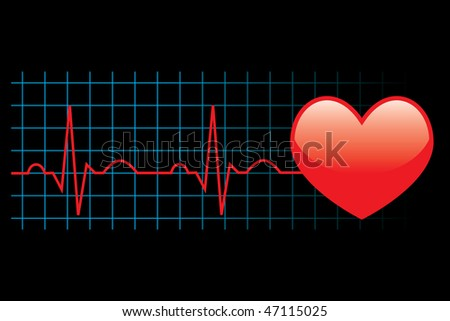 Electrocardiogram. See vector version in my portfolio - stock photo