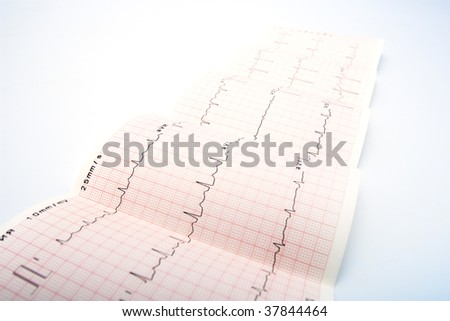 Electrocardiogram, waveform from EKG test, showing the patient's heart rhythm - stock photo