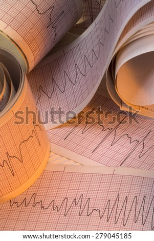 Electrocardiograph traces of Cardiac Arrhythmia including Ventricular Fibrallation (VF) and Ventricular Tachycardia (VT). Also known as Cardiac Dysrhythmia. - stock photo