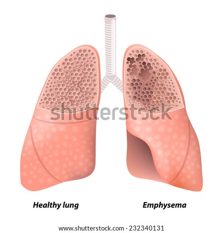Emphysema. Chronic obstructive pulmonary disease. diagram showing a cross-section of normal lung and lungs damaged by COPD. Human anatomy - stock photo