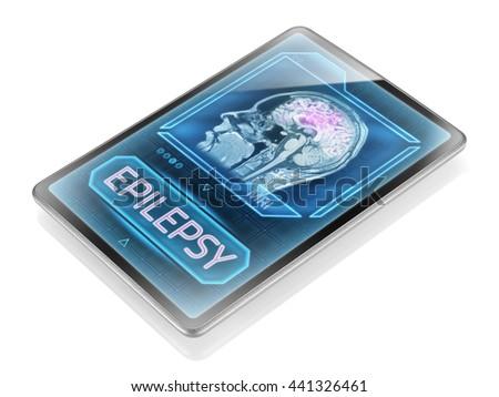 Epileptic seizure (3D illustration) - stock photo