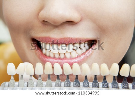 Examining a whiteness of teeth of a patient at the dentist - stock photo