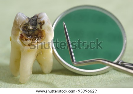 extracted tooth with dental caries - stock photo