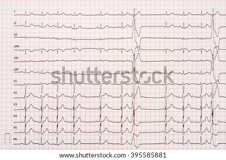 Extrasystole On 12 Lead Electrocardiogram Record Paper - stock photo