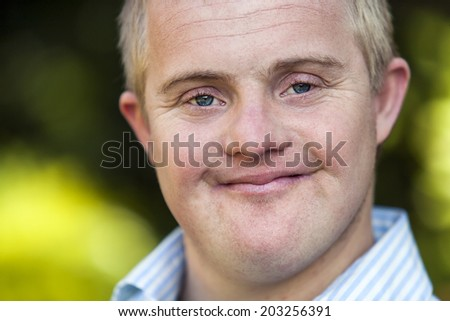 Extreme close up face shot of handicapped boy outdoors.