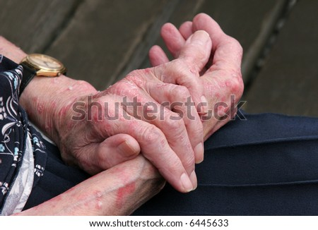 Extreme psoriasis on the hands of an elderly female.