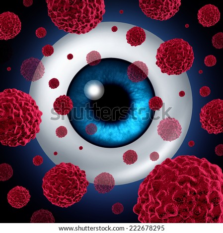 Eye cancer concept or intraocular cancers symbol as a human eyeball with cancerous cells spreading as a health care and medical icon for ocular tumor risk resulting in vision loss and blindness. - stock photo