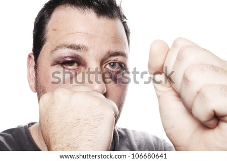 eye injury, male boxer with black eye isolated on white. man after fight with bruise - stock photo