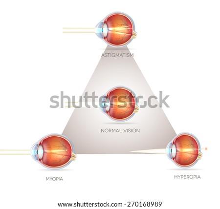 Eye vision triangle, vision disorders. Normal eye, Astigmatism, hyperopia and myopia. - stock photo
